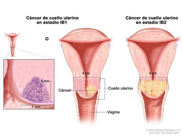Cáncer de Útero o Endometrio
