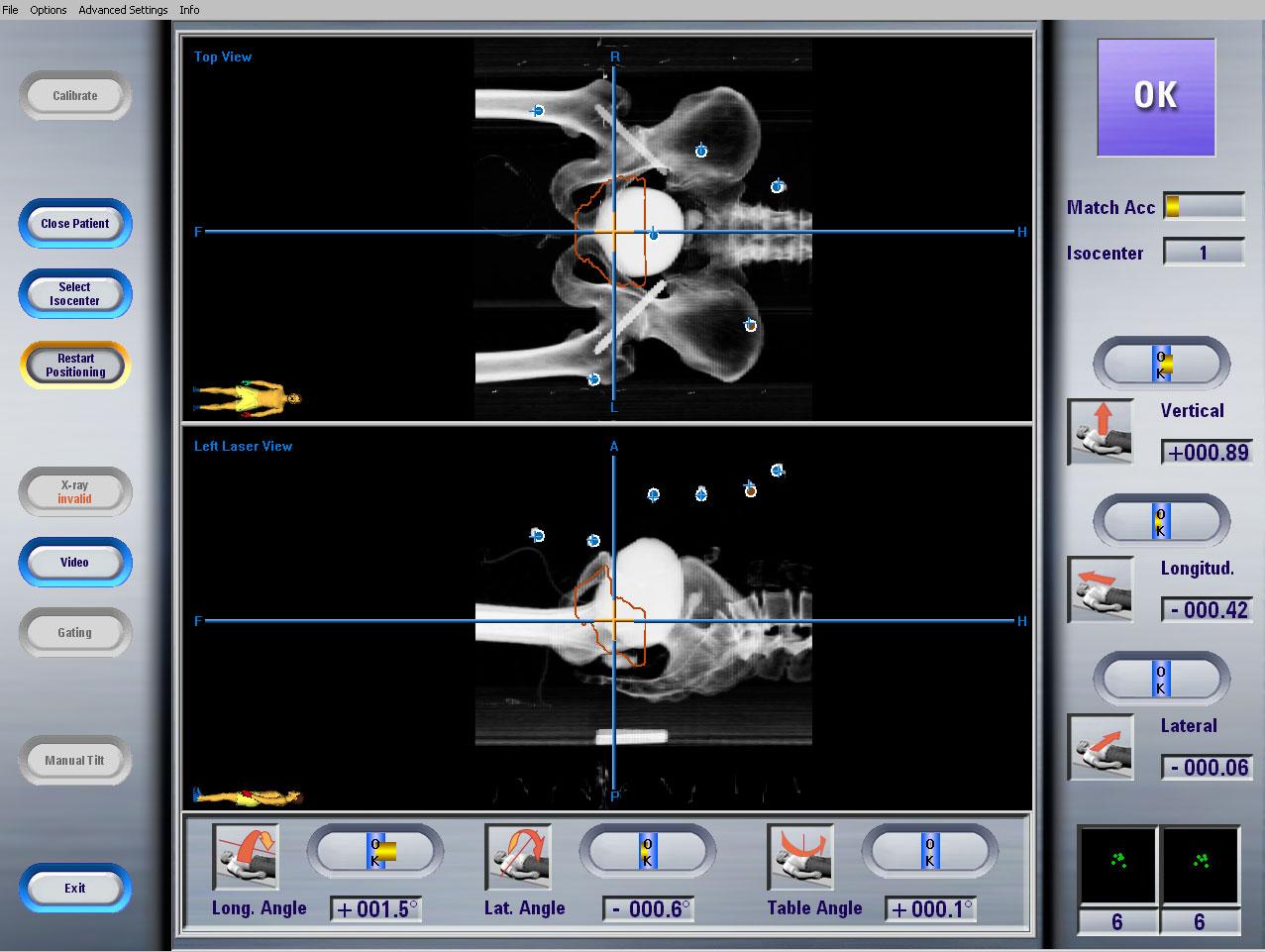 Radioterapia Guiada por Imágenes (Radioterapia IGRT)