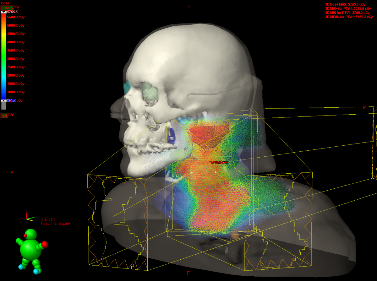 Radioterapia de Intensidad Modulada (Radioterapia IMRT)
